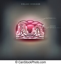 Celiac disease affected small intestine villi. Unhealthy...