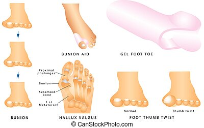 Bunion. Foot with a painful bunion. Hallux valgus or bunion...