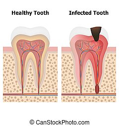 Pulpitis and Healthy tooth - Illustration showing pulpitis...