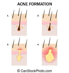Formation of acne