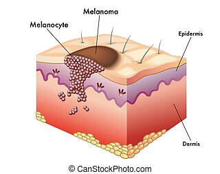 melanoma - medical illustration of the formation of melanoma