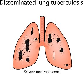 Disseminated tuberculosis. Vector illustration on isolated background