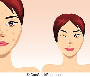 Acne treatment= with beautiful woman face, vector...