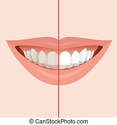 Dentist Symbol - Smiling Mouth with Cleaning Teeth, Before...