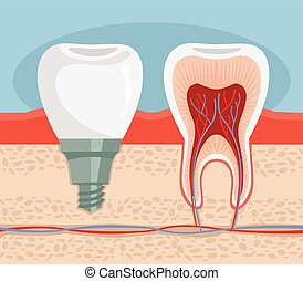 Dental implant Vector flat illustration