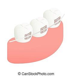 Braces on teeth icon, isometric 3d style - Braces on teeth...