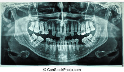 Human teeth xray - X ray of human mouth with teeth bones