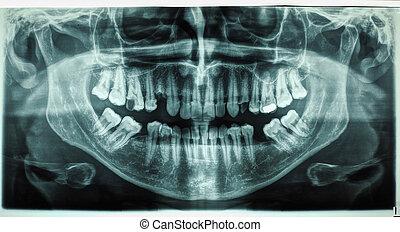 Xray, 人類, 牙齒