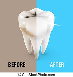 Dentist Symbol - Teeth Whitening Icon, Dentist Symbol in...