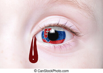 human's eye with national flag of slovakia with bloody...