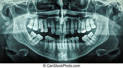 Human teeth xray - X ray of human mouth with teeth bones