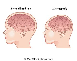 microcephaly - medical illustration of the symptoms of...