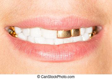 gold teeth girl