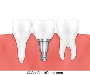 Dental implant and normal tooth vector illustration....