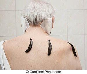 Treatment with leeches shoulder and neck area, back area in...