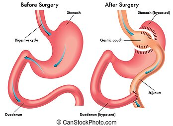 gastric bypass - medical illustration of a gastric bypass...