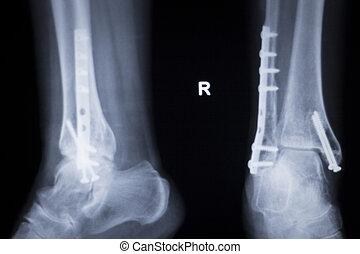 Ankle injury metal implant xray scan