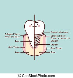 cute cartoon tooth implant anatomy , great for health dental...