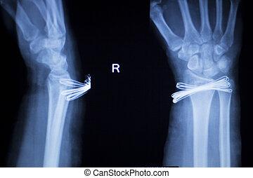 Wrist injury metal implant xray scan