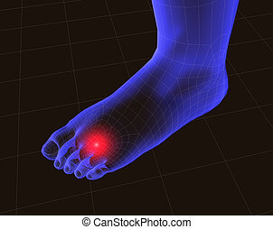 3d feet with pain - 3d image of feet with pain