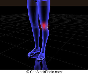 3d human with pain 11 - x-ray of knee with red pain