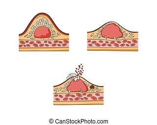 Cholesterol plaque medical educational vector - Cholesterol...