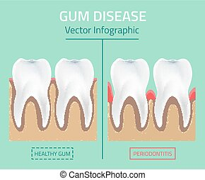 Teeth infographic Gum disease stages - Teeth infographic Gum...