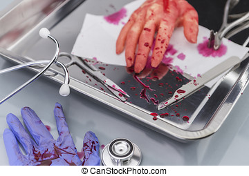 transplant of hand in theoperating
