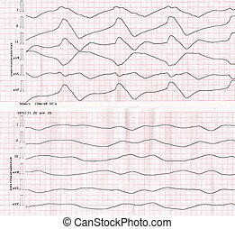 Tape ECG with idioventricular rhythm quot;dying heartquot; -...