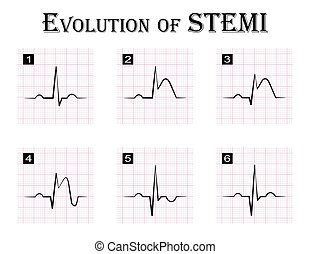 ECG of evolution step by step of STEMI ST elevation...
