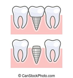Dental Implant and Tooth Set. Vector illustration