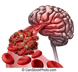 Brain Blood Clot - Brain blood clot medical concept as 3D...