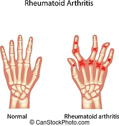 Illustration of Rheumatoid Arthi - Vector illustration of...