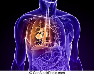 lung cancer - 3d rendered illustration of a human body with...