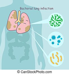 lung with bacterial lung infection