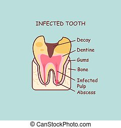 infected tooth concept - cartoon dental anatomy infected...