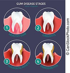 Teeth vector infographic - Teeth infographic. Gum disease...