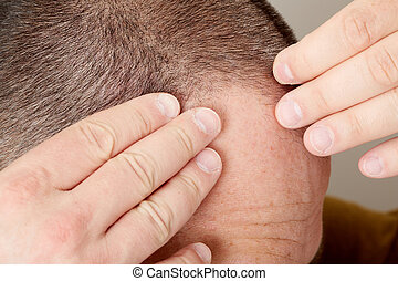 Hair loss - Man touching head with his hands Hair loss...