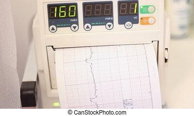 Cardiotocography - Fetal heartbeat monitor, cardiotocography