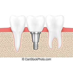 Dental human implant Medical human dental, implant dental,...