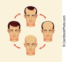 Stages of baldness Vector flat cartoon illustration