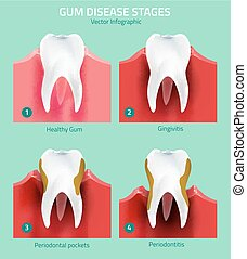Teeth infographic vector - Teeth infographic. Gum disease...