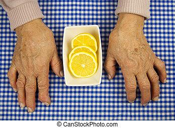 Rheumatoid arthritis hands and lemon. Fruit and health