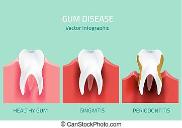 Gum disease stages. Teeth infographic - Teeth infographic....