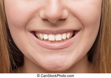 Smile with white healthy teeth.