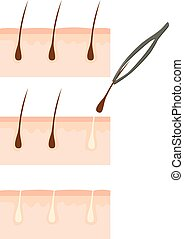 Follicle Hair Removal - Close up of tweezers removing hair...
