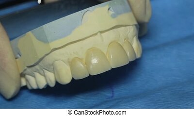 Dental Cast Jaws, Dentures, Dental Veneers HD