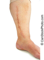 Human leg with postoperative scar of cardiac surgery Medical...