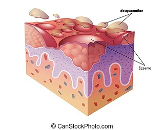 eczema - medical illustration of the symptoms of eczema