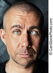 strabismus - A man with strabismus. Orthoptics.